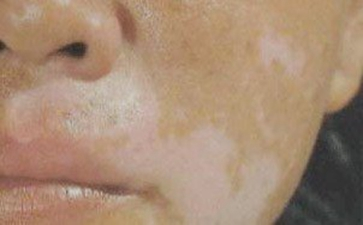 嘴唇为什么会长白癜风